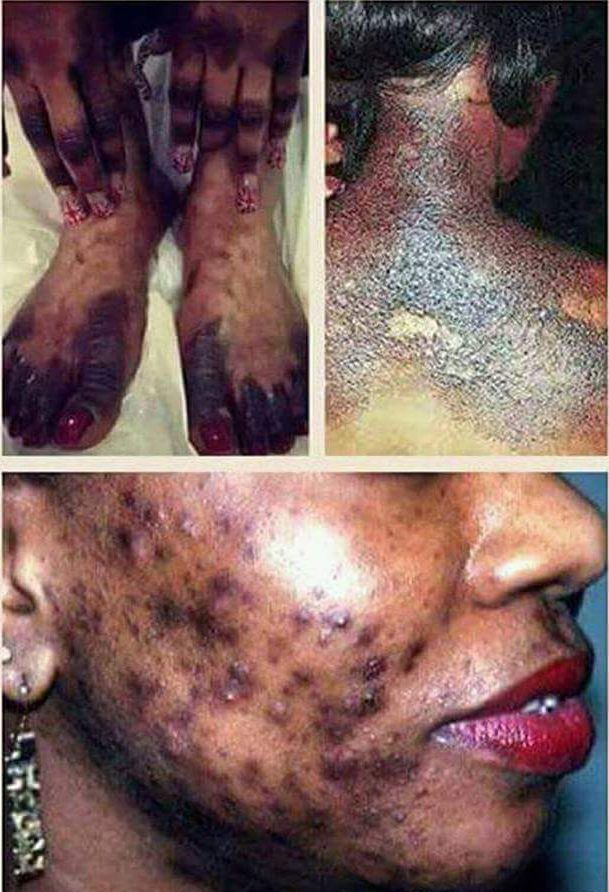Image result for skin bleaching effects